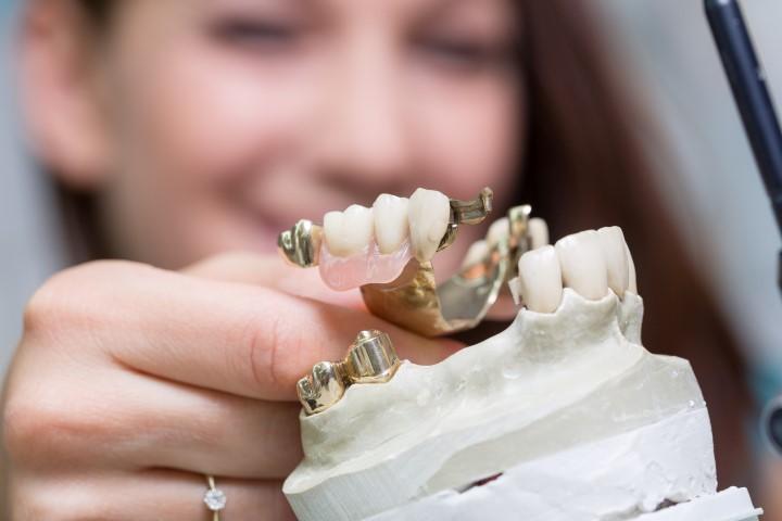 Zahnprothese in der Bearbeitung beim Zahntechniker